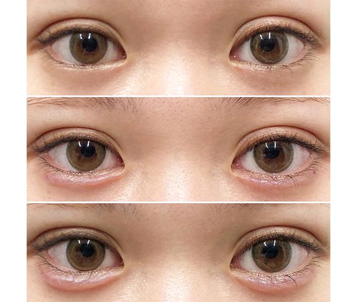 涙 袋 ヒアルロン 酸 持ち 当院の涙袋ヒアルロン酸注射は、かなり長期間持続します。